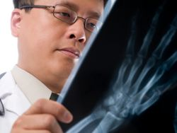 A doctor looks at an x-ray