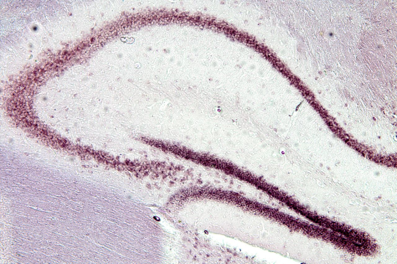 Expression of PLAG1 mRNA in the hippocampus of the mouse (photo: Akash Sahota).